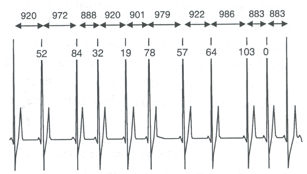 Esimerkki sykevälivaihtelusta EKG-signaalissa. Peräkkäisten sydämen lyöntien välinen aika vaihtelee syketason pysyessä muuttumattomana.